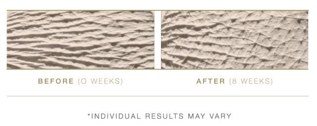 Before-After-Total-Eye-Repair-Serum